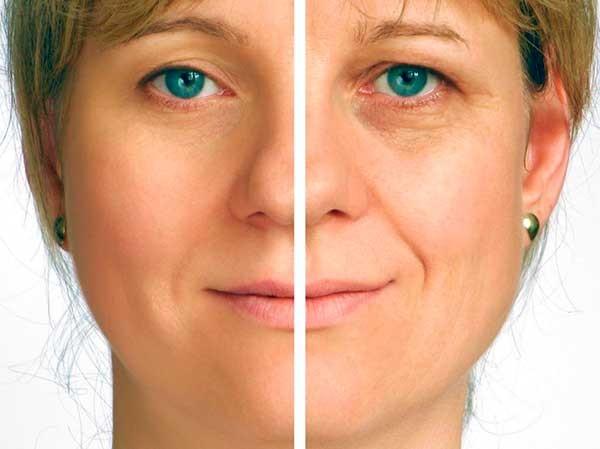 Фотоомоложение лица, стоит ли делать данную процедуру