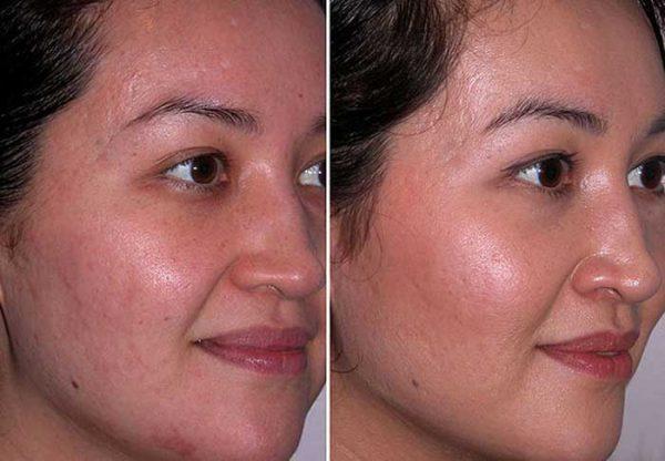 Чистим лицо мягко – миндальный пилинг