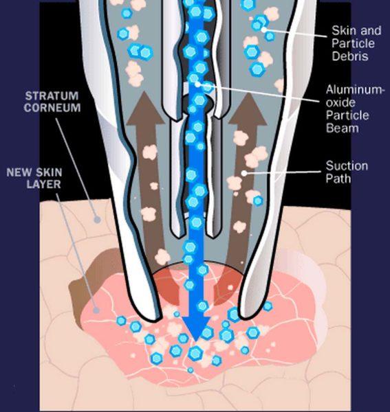 Микродермабразия – эффективный способ избавиться от морщин и прыщей