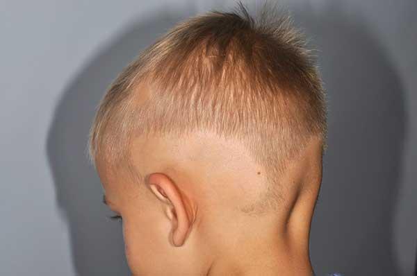 Ребенку год выпадают волосы