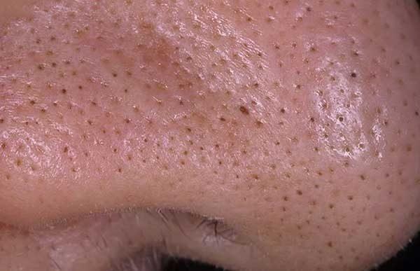 Черные точки на носу, щеках и подбородке