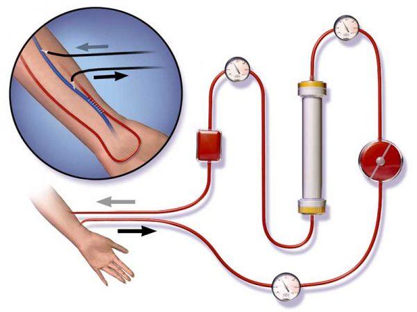 Очистка организма от шлаков и токсинов: с чего начать, как провести, способы, методики