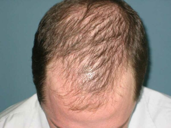 Андрогенетическая алопеция у мужчин лечение