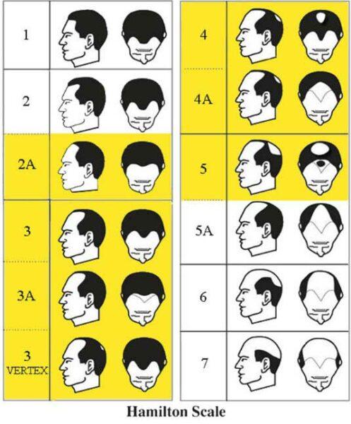 Альфа редуктаза выпадение волос