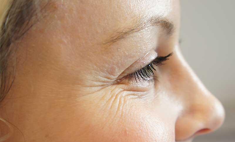 Как избавиться от мимических морщин вокруг глаз, на лбу в домашних условиях и с помощью современных методов