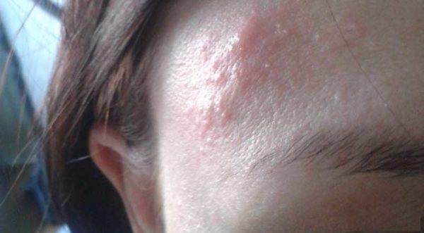 Никотиновая кислота для волос в ампулах: применение и отзывы