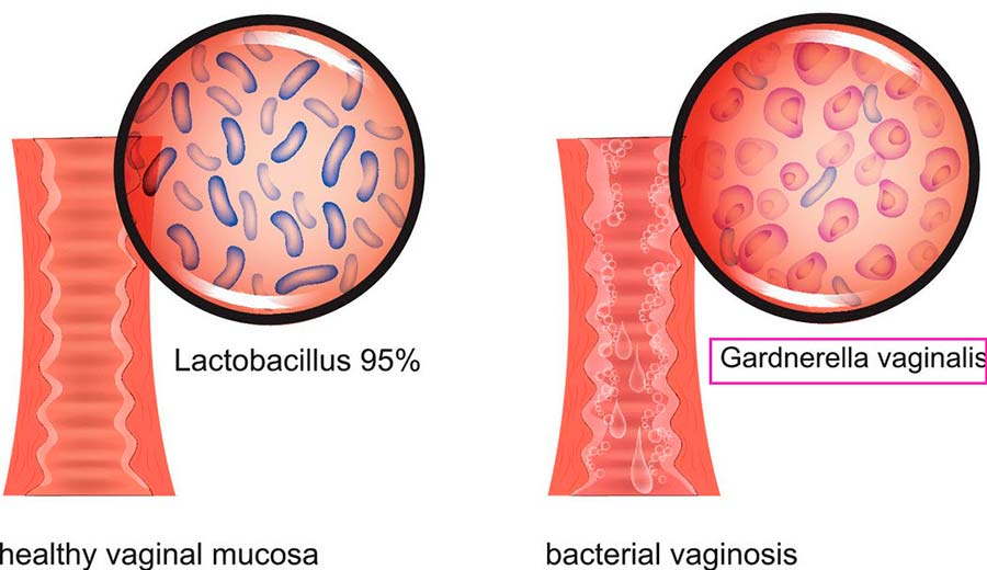 Гарднерелла у женщин: пути передачи, симптомы и схема лечения.